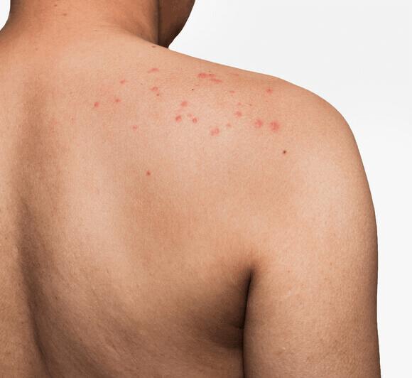 Skin rash