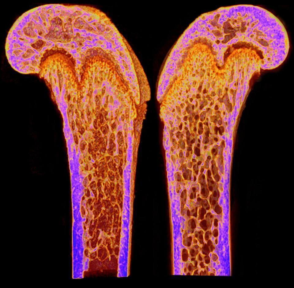 Problems with bone density